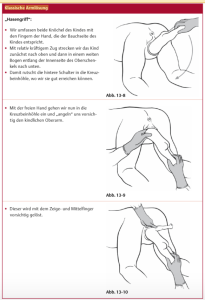 Assisting rotation of the fetal back to anterior in a breech birth